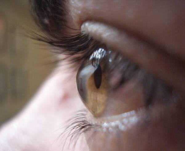 Kontaktlinsenversorgung bei irregulären Hornhautformen